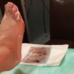 zabieg złuszczający na stopy