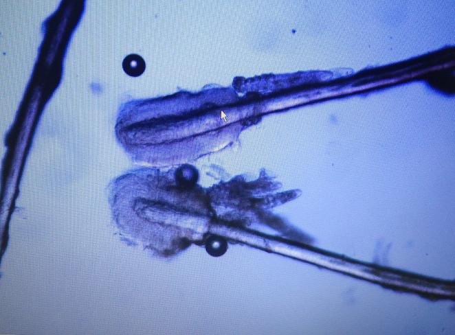 Rzęsy pod mikroskopem