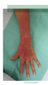 hipoalergiczni-grozne-alergeny-i-neurotoksyny-w-majestacie-prawa