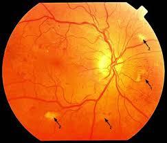 pogladowo-strzalkami-zaznaczono-ogniska-wysiekow-w-rejonie-plamki-liczne-mikrowłosniaki-duza-kretosc-naczyn-krwionosnych