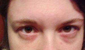 Alergia na nikiel - objawy - magazyn Hipoalergiczni