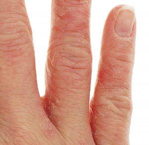 Alergia na nikiel - jak z nią walczyć? Sprawdź, co zrobić - magazyn Hipoalergiczni